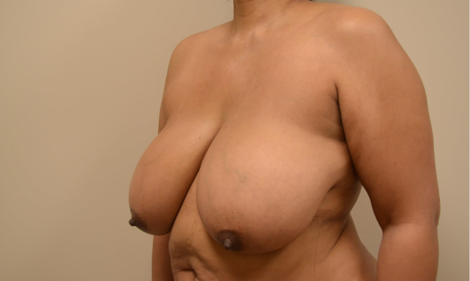Breast Reduction-Hinsdale, IL Before