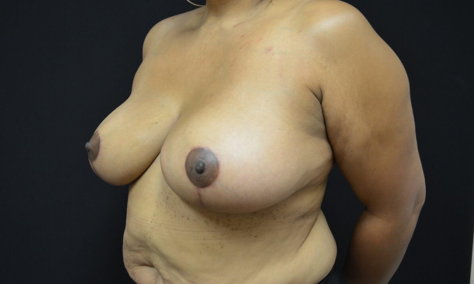 Breast Reduction-Hinsdale, IL After