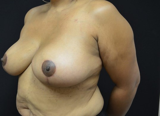 Breast Reduction- Hinsdale, IL Before
