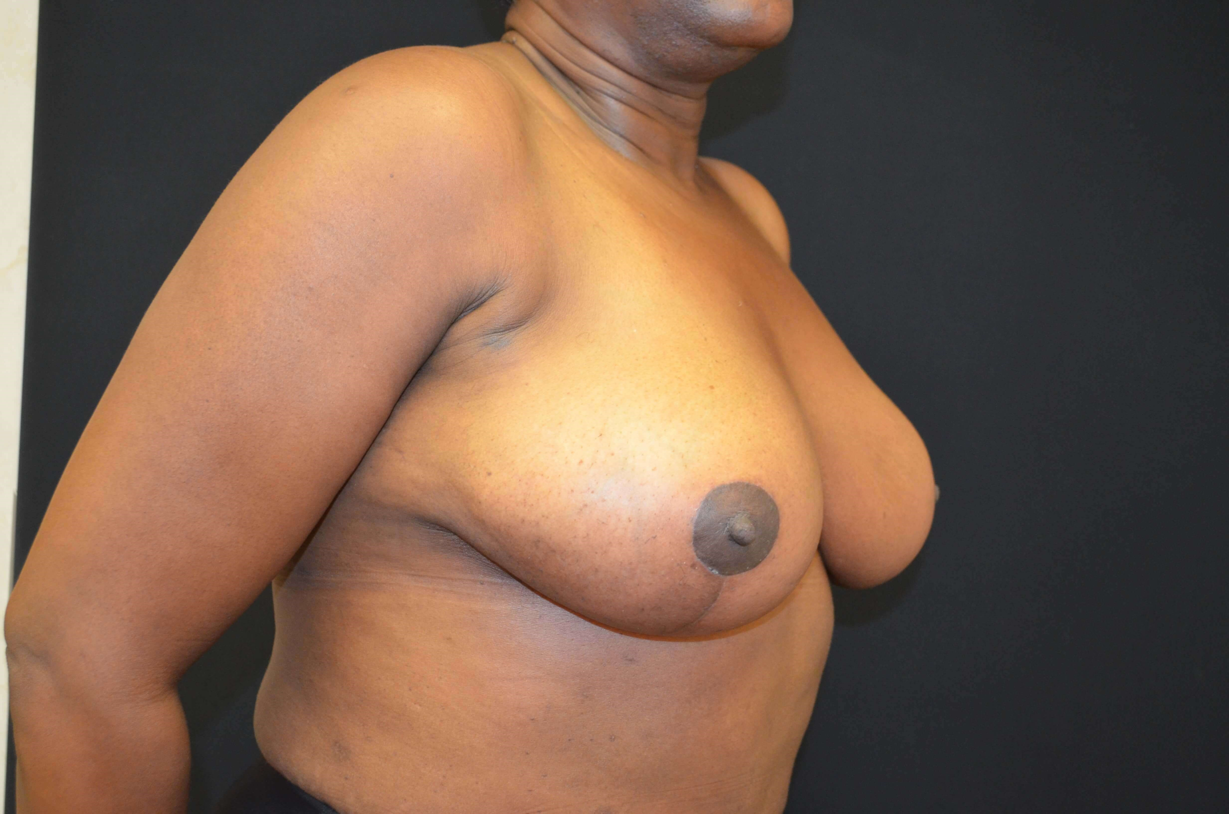 Breast Reduction- Hinsdale, IL After