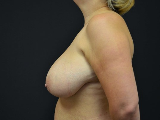 Breast Lift-Hinsdale, IL Before