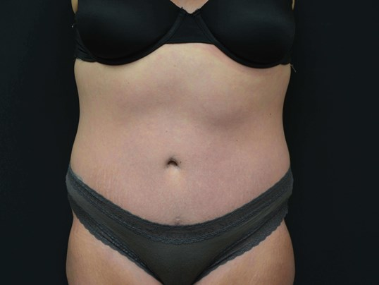 Tummy Tuck Scar After