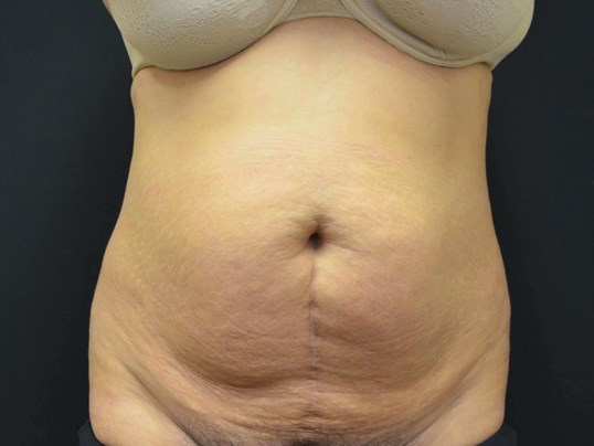 Tummy Tuck- Hinsdale, IL Before