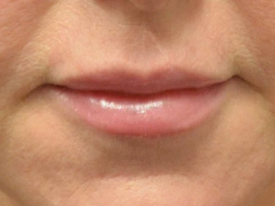 Lip Enhancement with Juvederm After