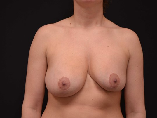 Breast Assymetry Revision Before