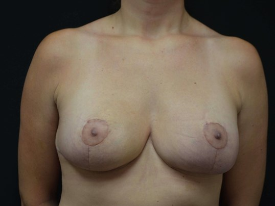 Breast Assymetry Revision After