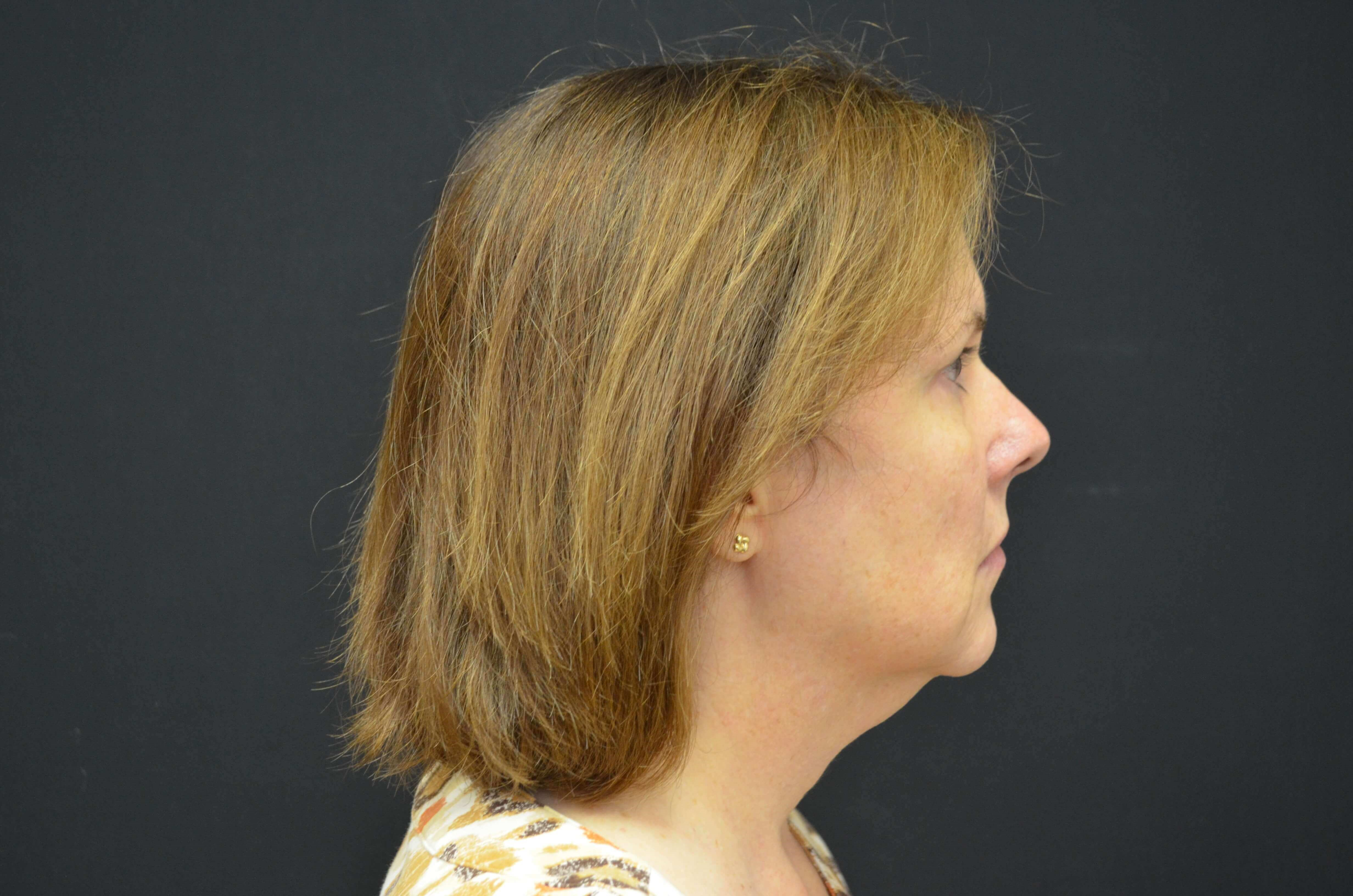 Lower Face Lift- Hinsdale, IL Before