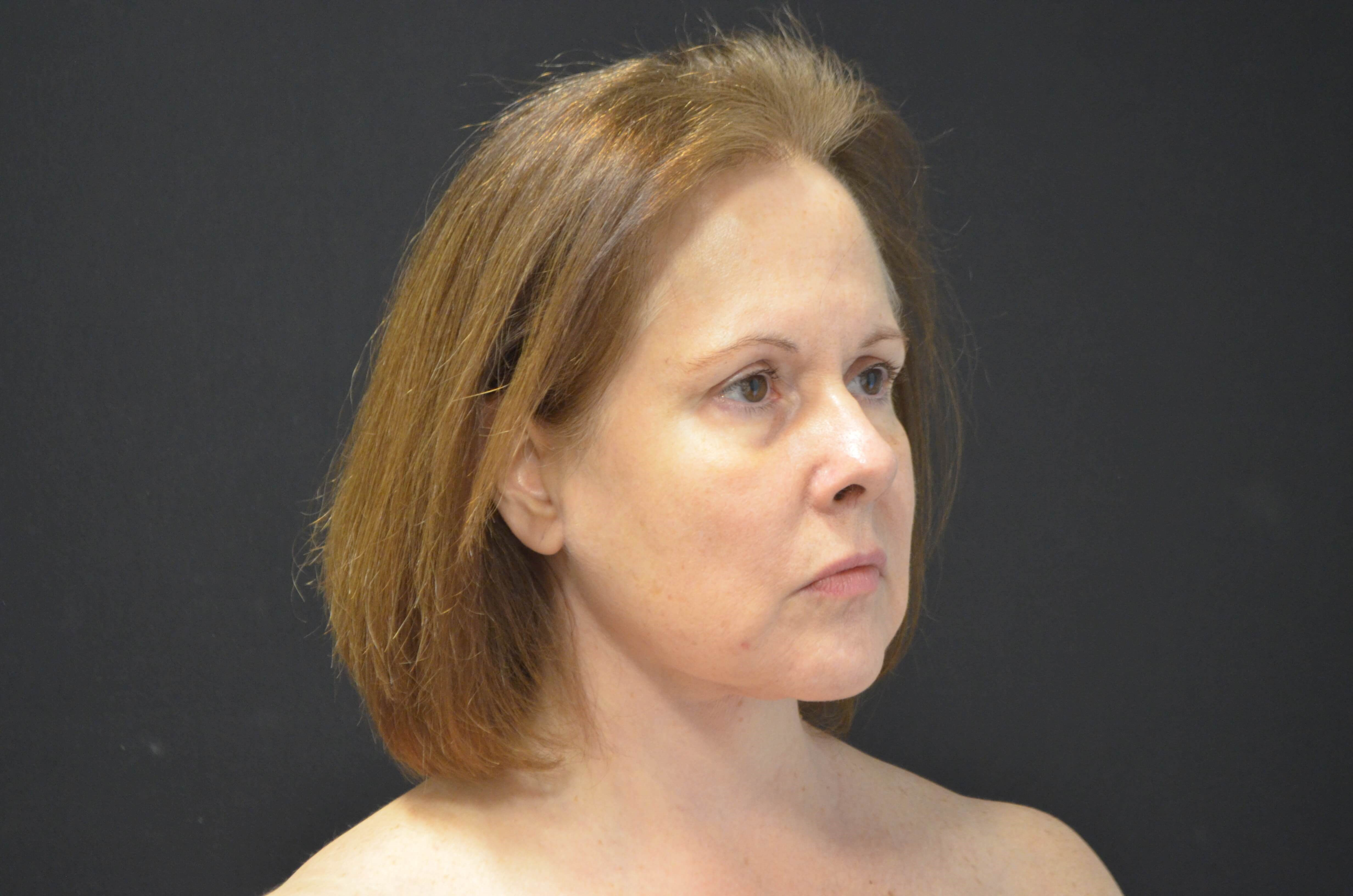 Lower Face Lift- Hinsdale, IL After