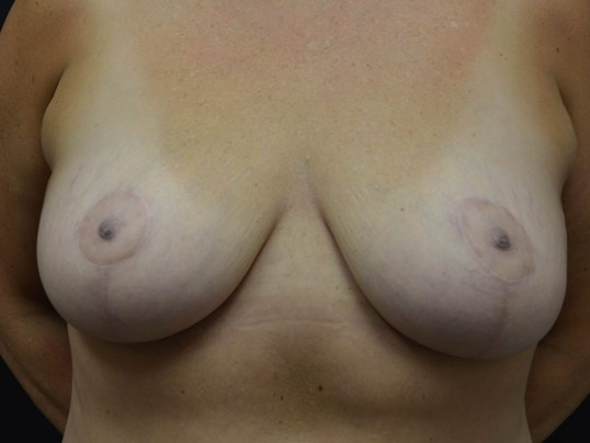 Breast Lift-Hinsdale, IL After