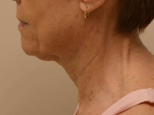Lower Face & Neck Lift Before