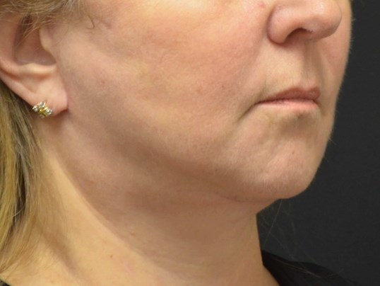 Lower Face & Neck Lift After