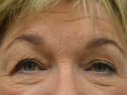 Upper Eyelid Lift Before
