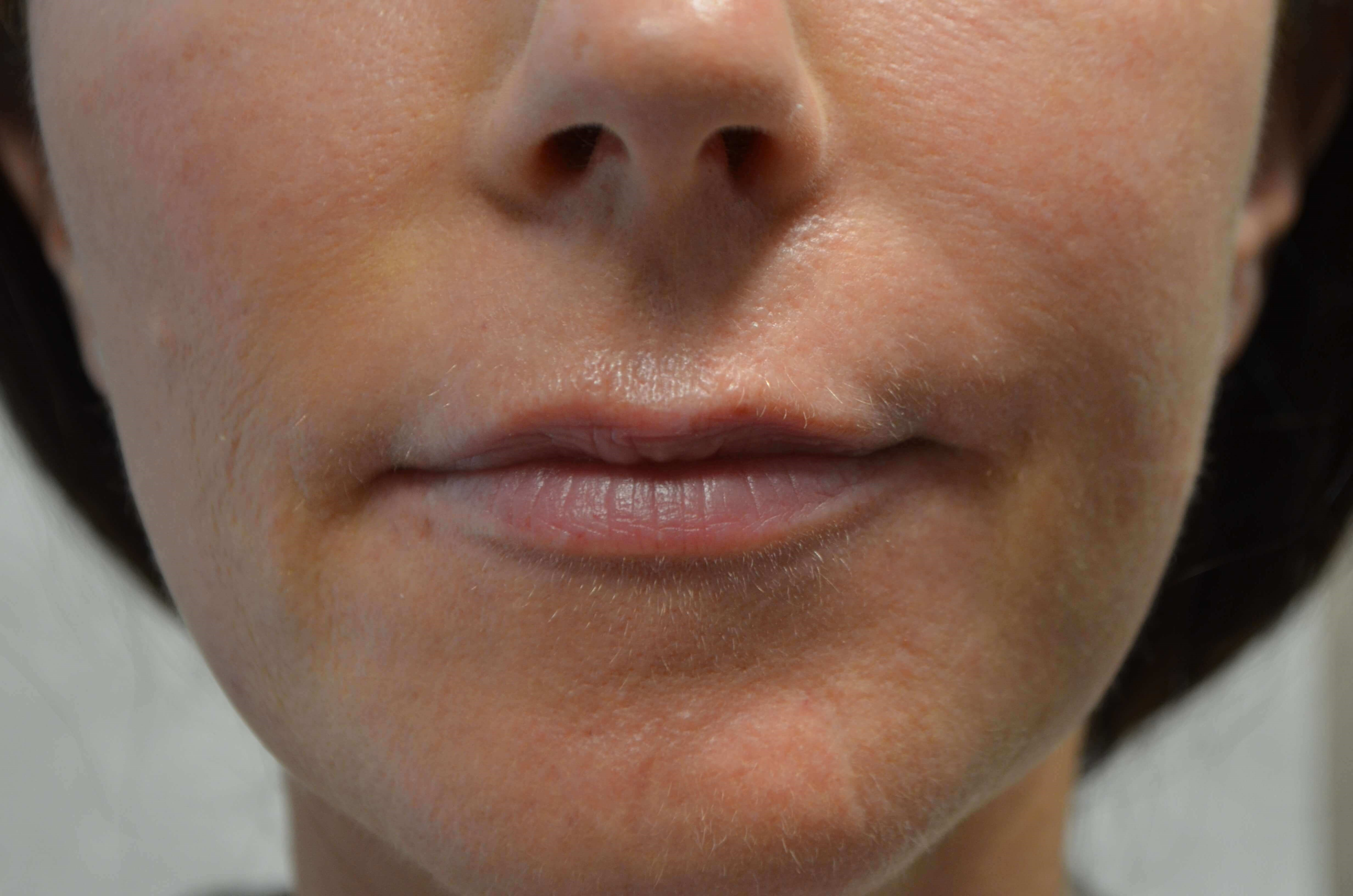 Lip Enhancement with Juvederm Before