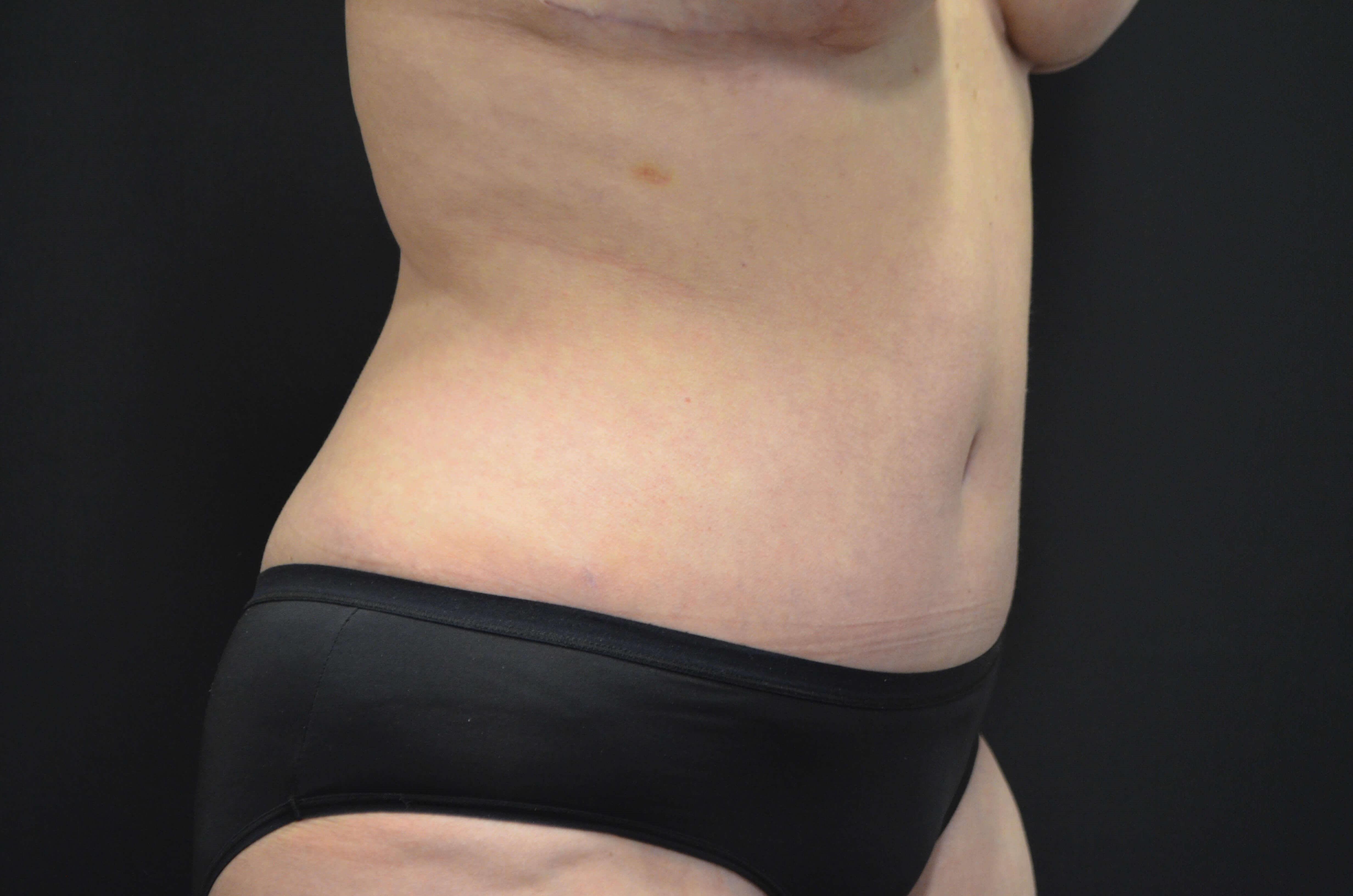 Tummy Tuck- Hinsdale, IL After