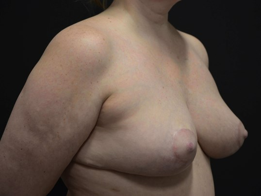 Breast Lift- Hinsdale, IL After