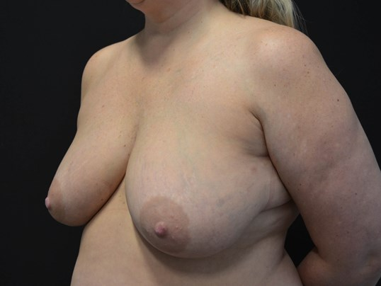 Breast Lift- Hinsdale, IL Before
