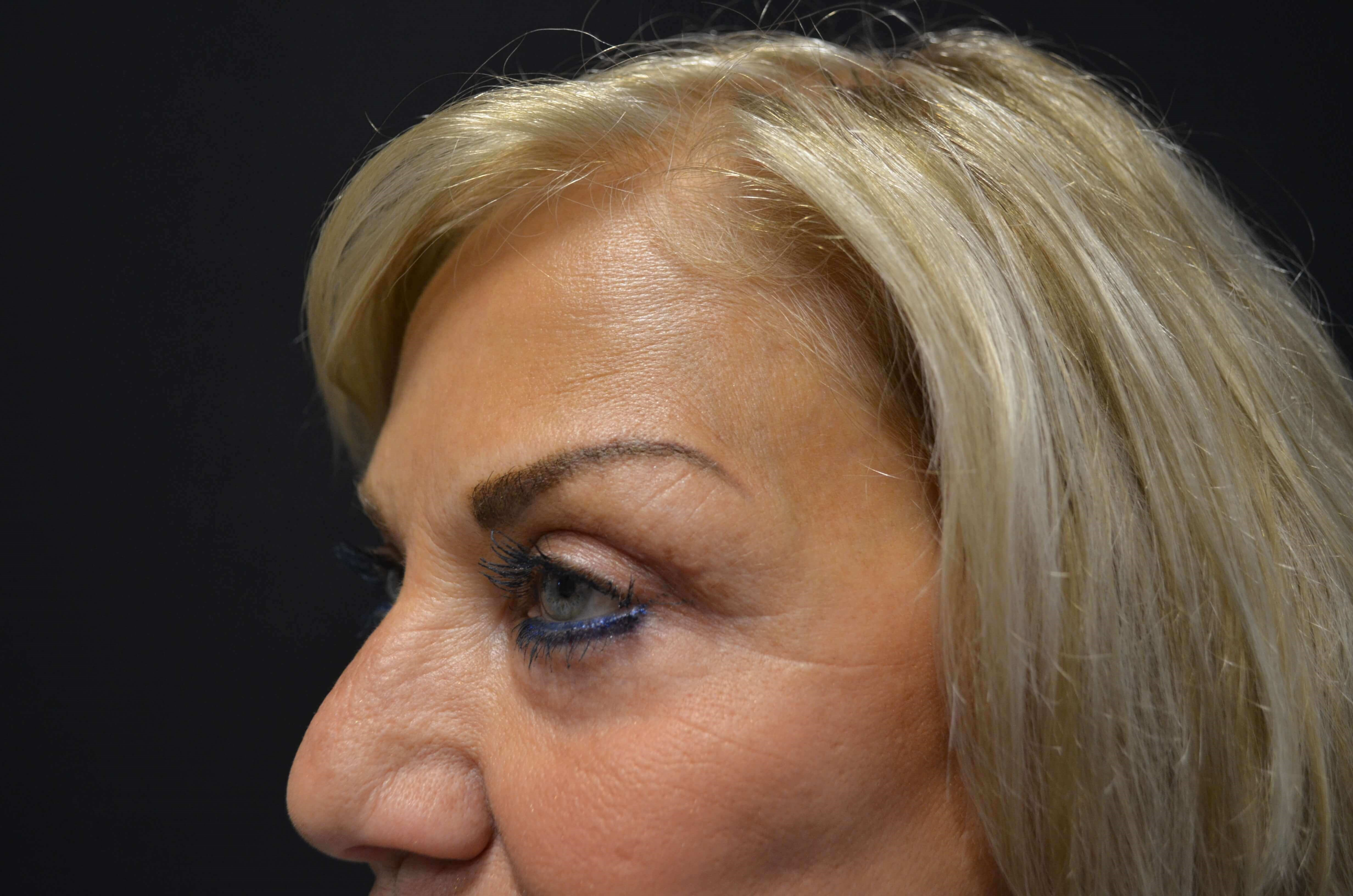 Upper Eyelid Lift After