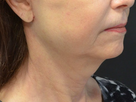 Natural Lower Face & Neck Lift After