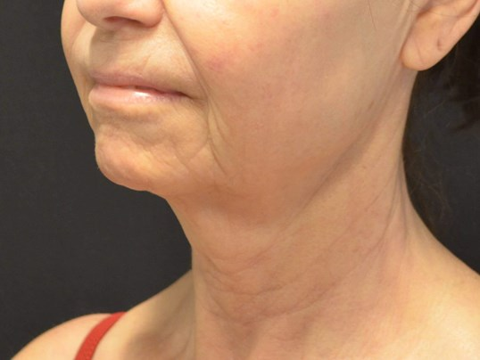 Natural Lower Face & Neck Lift Before